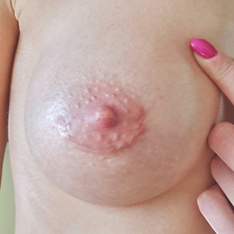 Маммопластика через ареолу