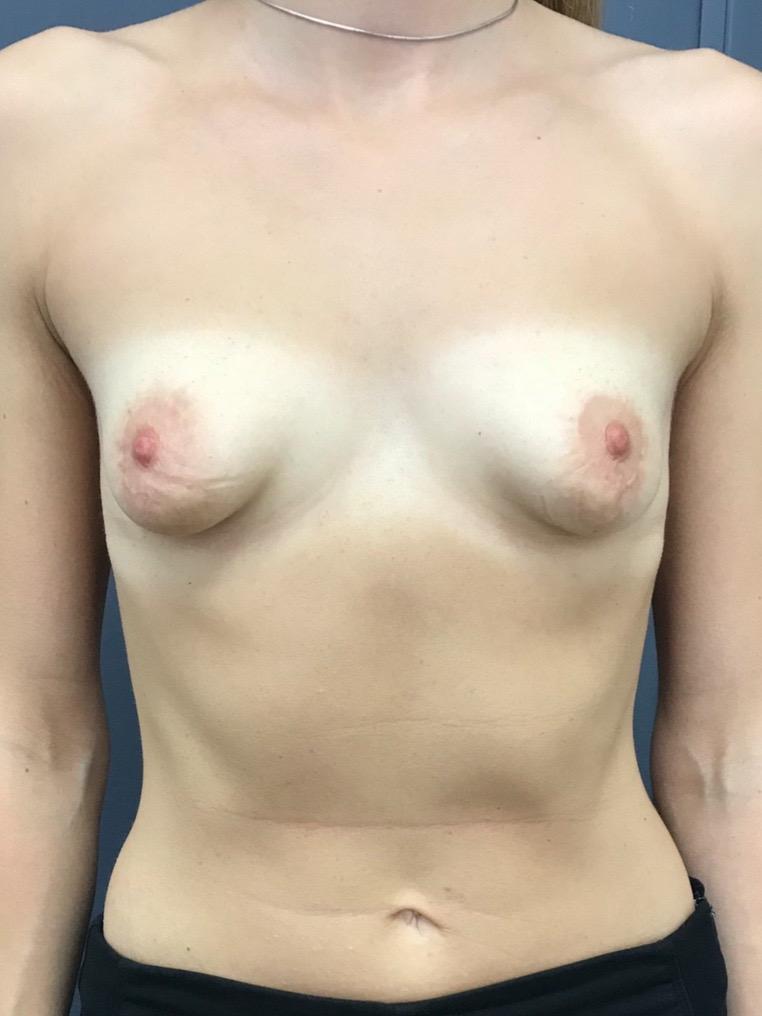 Фото до после ранее выполненной неэффективной коррекции тубулярной груди. Осмотр перед повторной коррекций