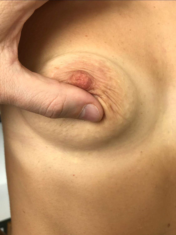 сужения 'пятна'' молочной железы