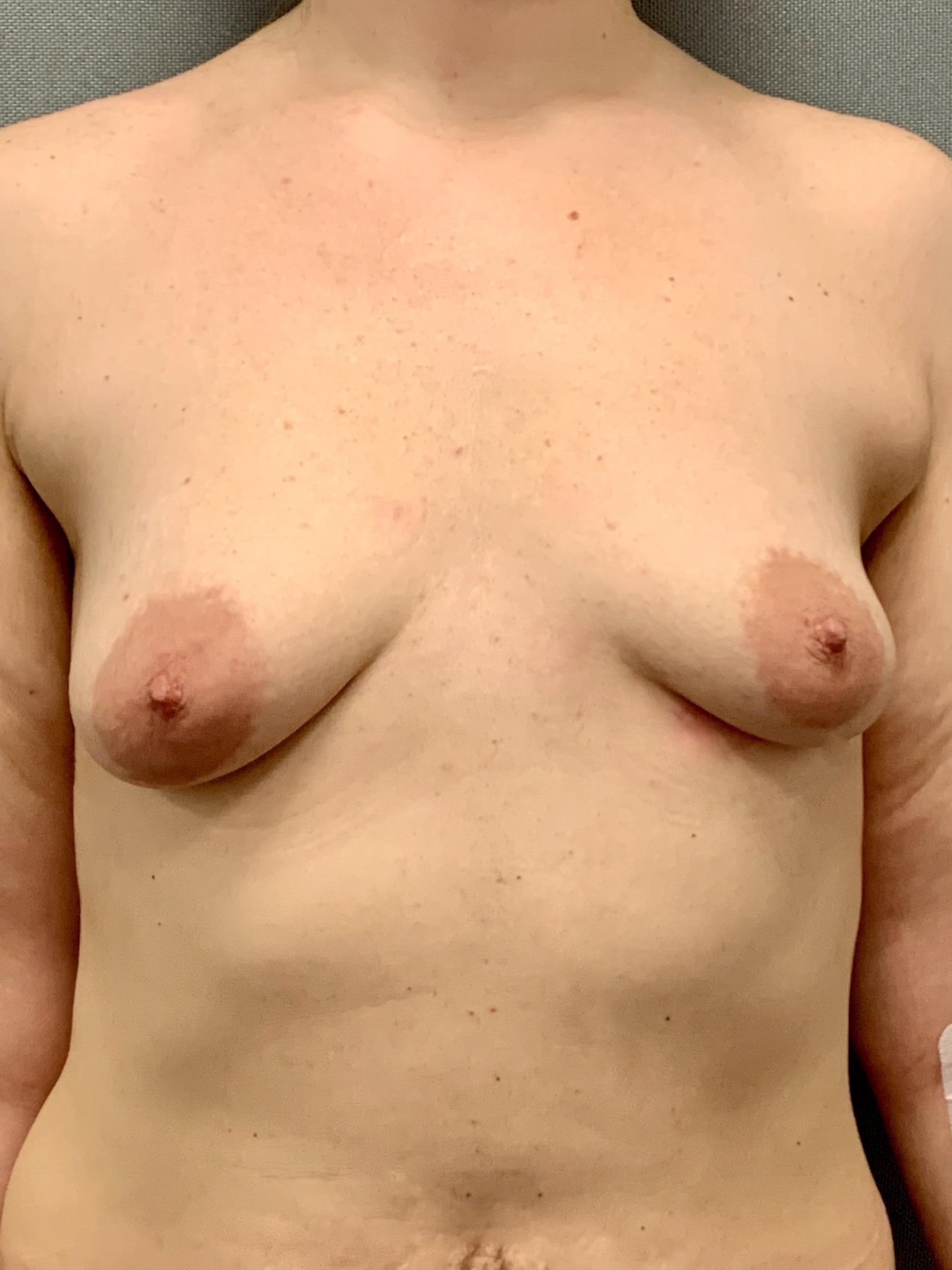 Фото классической тубулярной груди