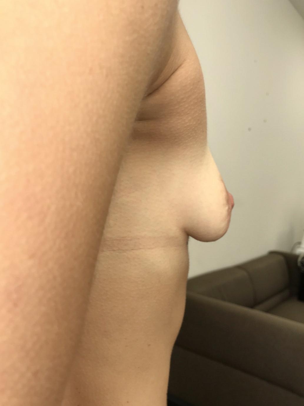 пятна молочной железы