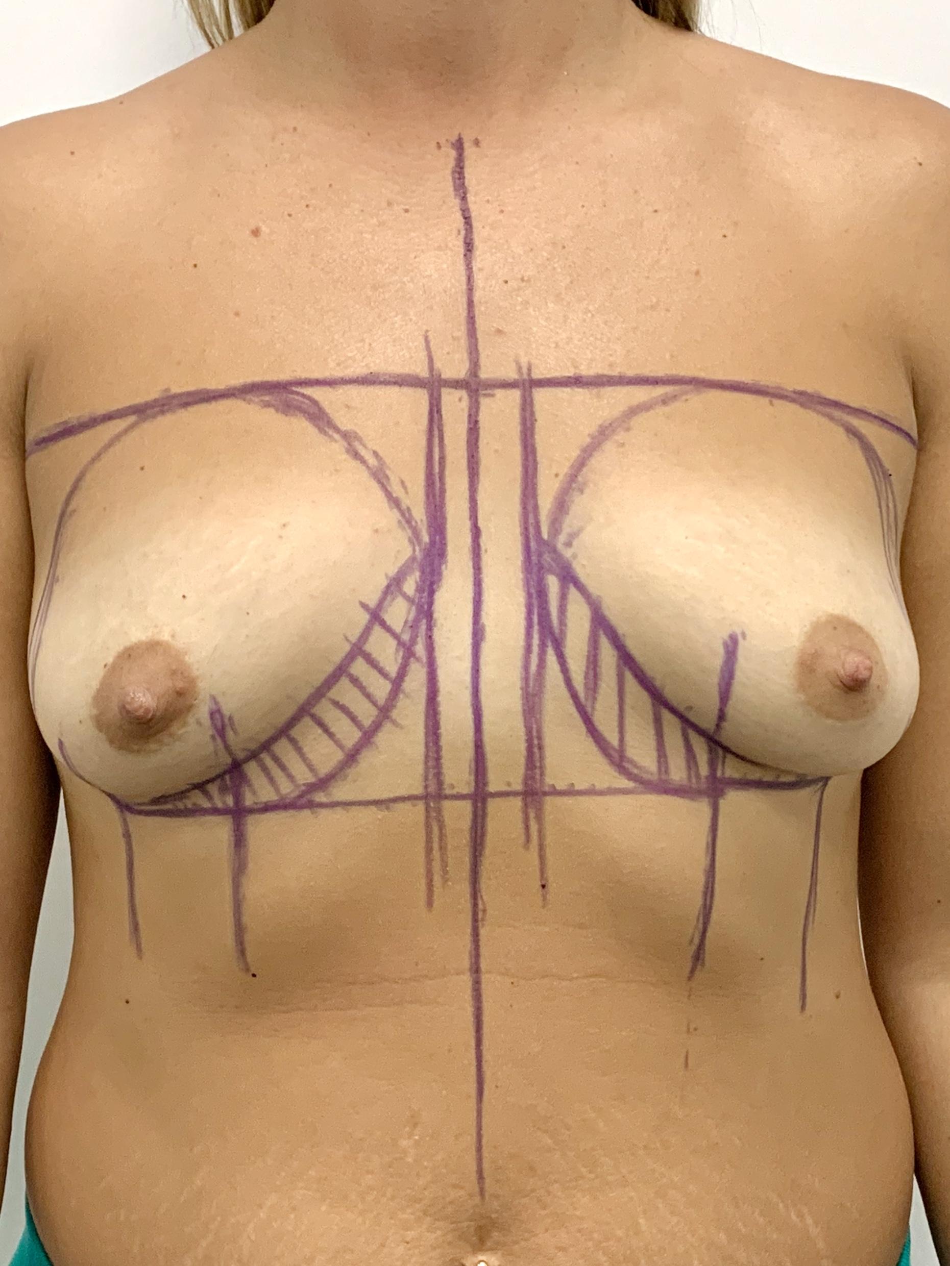 Фото груди с признаками тубулярности, отмечаетмя 'поджатость'' нижне-внутренних контуров молочных желез. штрихом показано нормальное расположение молочных желез на грудной клетке.