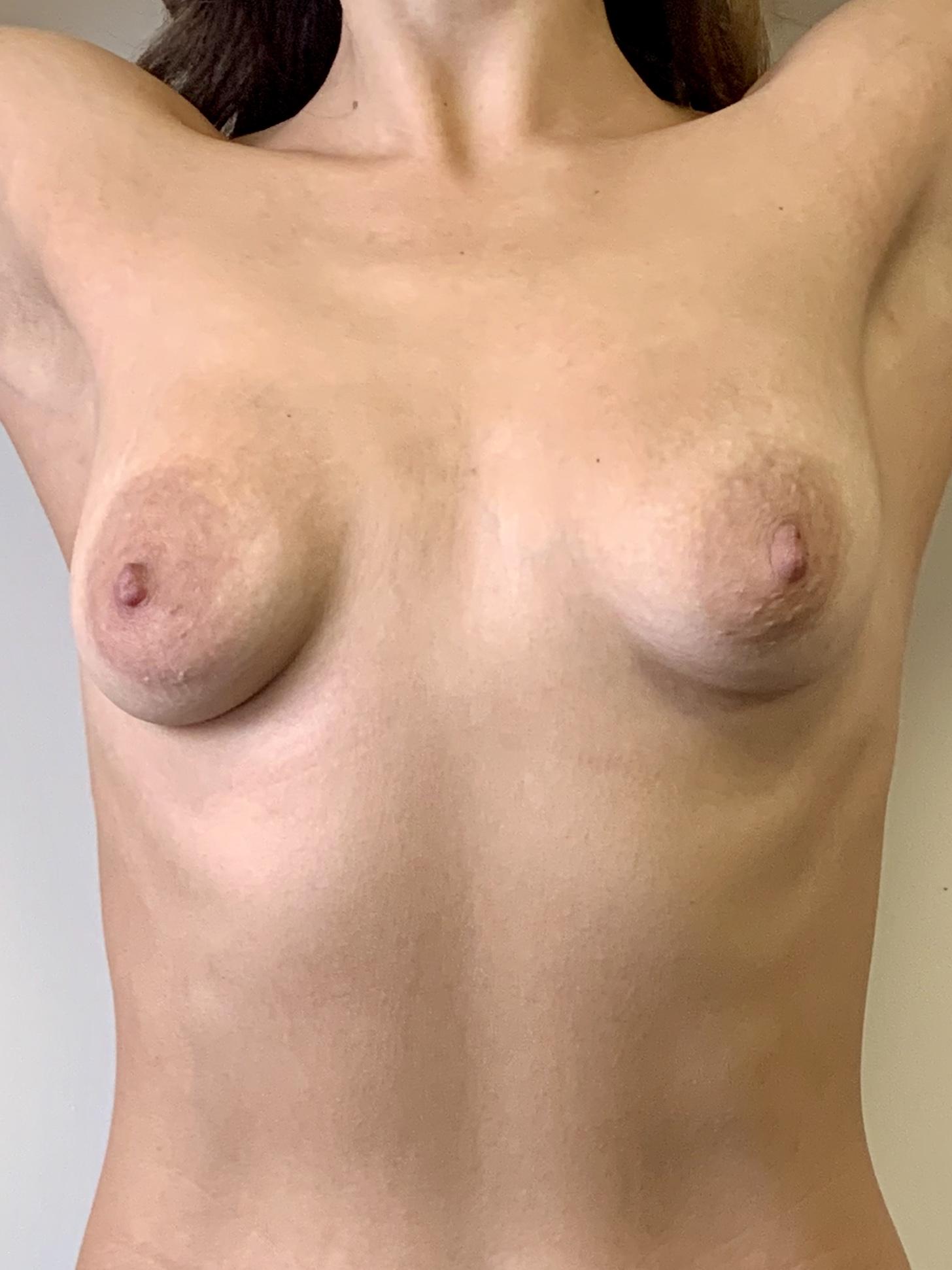 Расширение ареол при тубулярной груди