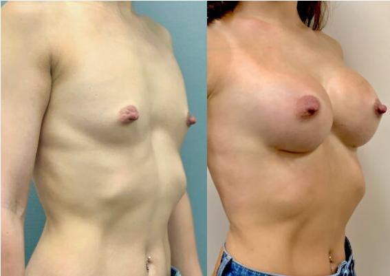 Motiva 350 мл, 4 месяца после операции