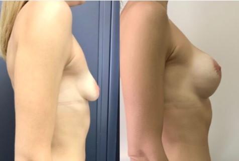 Polytech 315 мл, анатомический профиль, год после операции
