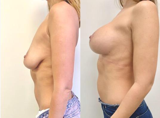 Фото до и после подтяжки молочной железы