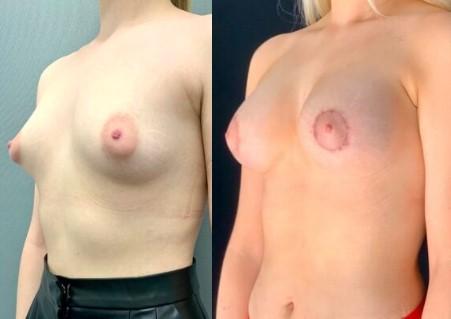 Polytech 380 мл, анатомический профиль, 4 мес после операции