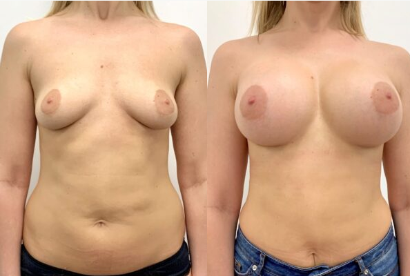 Motiva Ergonomix 380 мл, 2 месяца после операции