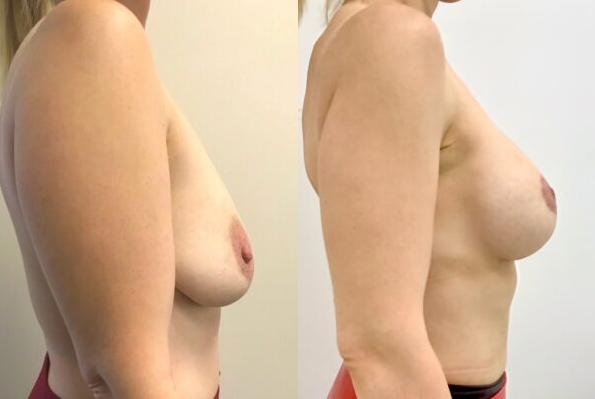 Фото до и после мастопексии
