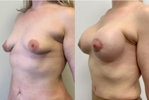исправление тубулярной груди фото до и после