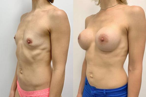 Motiva Ergonomix 350 мл, 6 месяца после операции