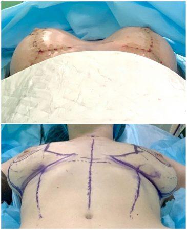 фото операции по уменьшению груди