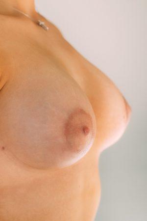 3 месяца после коррекции тубулярной груди