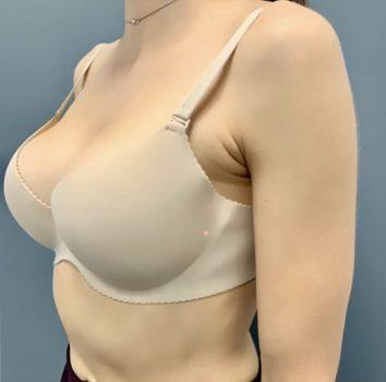 Результат коррекции тубулярной груди
