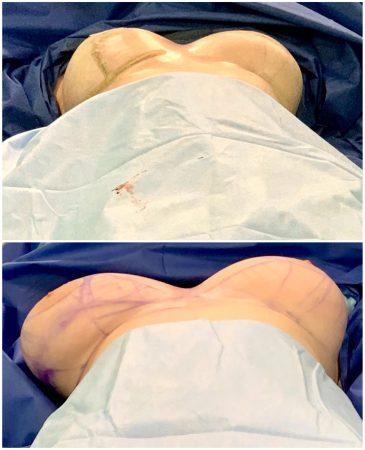 фото с операции по уменьшению груди