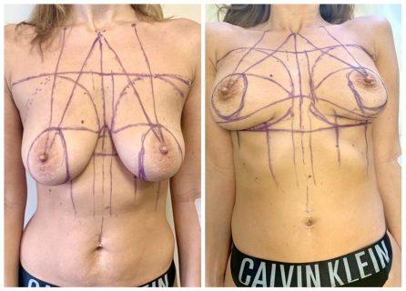 Разметка груди перед подтяжкой