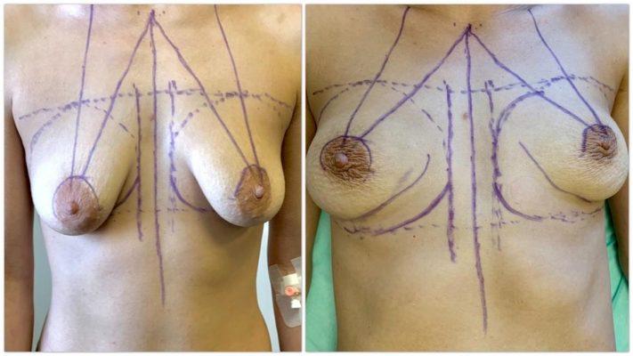 Фото разметки груди перед операцией